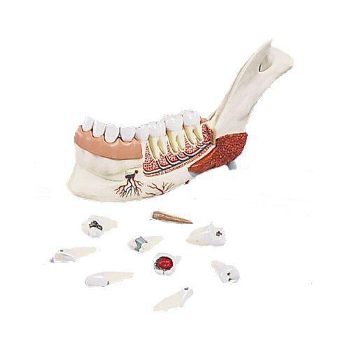 Unterkieferhälfte mit 8 kariösen Zähnen, 19-teilig VE290