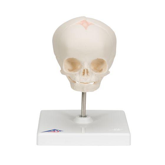 Fetus-Schädel, auf Stativ A26